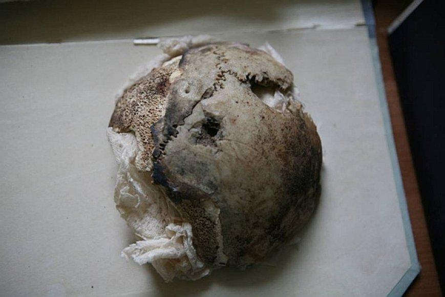 JAV mokslininkai prieš kurį laiką pareiškė, kad Rusijos archyve saugomi kaukolės fragmentai iš tiesų yra moters, o ne Trečiojo reicho vadovo.