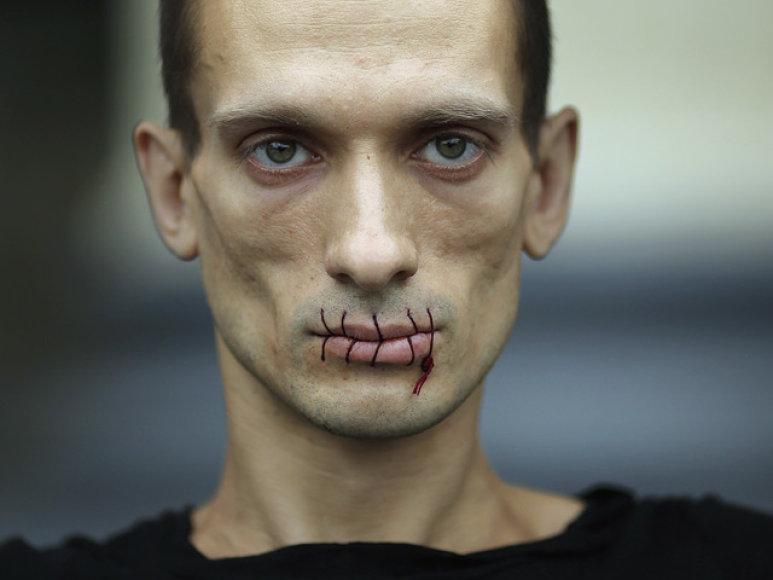 Dailininkas P.Pavlenskis rengia akcijas, kurių metu save žaloja.