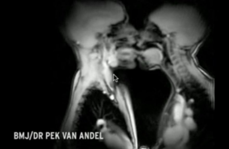 Seksas magnetinio rezonanso aparate