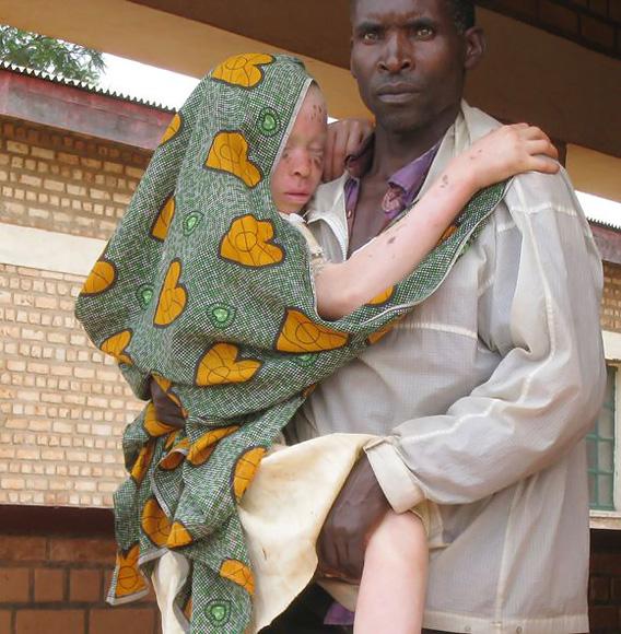 Juodaodžiams albinosams iškilo mirtina grėsmė