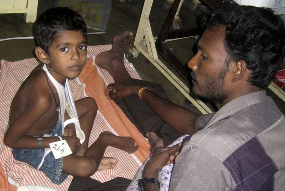 Per kovas Šri Lankoje sužeista daug žmonių, tarp jų – ir vaikai.
