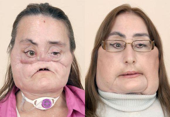 Prieš ir po viso veido transplantacijos.
