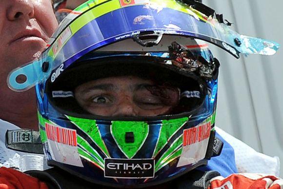 F1 pilotas Felipe Massa po avarijos Vengrijos GP