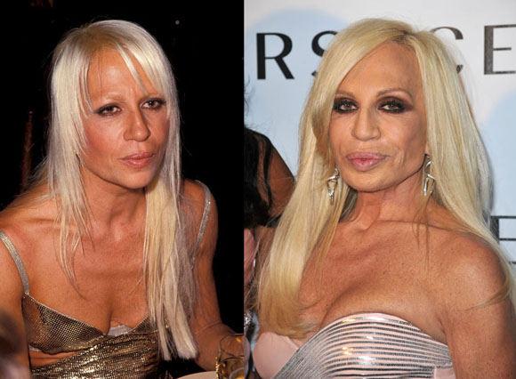 AOP ir Scanpix nuotr./Donatella Versace anksčiau ir dabar