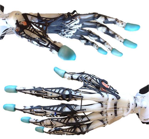 Vašingtono universiteto nuotr./Robotinė ranka