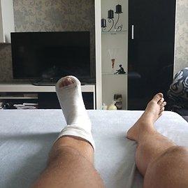 Asmeninė nuotr./Rokas Laureckis patyrė kojos traumą