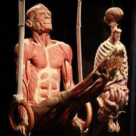 Organizatorių nuotr./Body Worlds Vital eksponatai