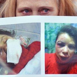 "AFP/""Scanpix"" nuotr./Tetjana Čornovol"