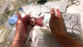Stebuklas: mažiausias pasaulyje gimęs berniukas išgyveno ir grįžo namo