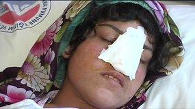 Vyro nupjautą nosį afganei sugrąžino turkų medikai