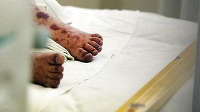 Meningokokas: kaip atpažinti šią baisią ligą?