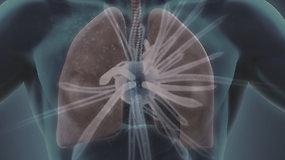 Kas yra tuberkuliozė ir kodėl ja užsikrėsti gali kiekvienas?