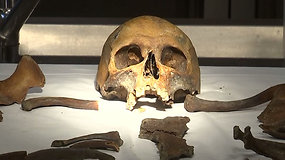 Gydytojas patologas bando įminti šimto metų senumo mįslę