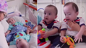 Nepaisydama pavojaus jauna mama pasiryžo gimdyti Siamo dvynius – po metų džiaugiasi Kalėdų stebuklu