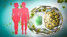 Populiariausia lytiniu keliu plintanti liga: simptomai, pasekmės ir gydymas