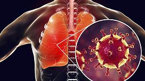 Trumpai ir aiškiai: kas tiksliai nutinka žmogaus kūne, užsikrėtus koronavirusu?