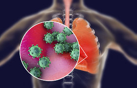 COVID-19 ir plaučių uždegimas: Santaros klinikų medikai paaiškina, ką turėtume žinoti