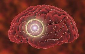 Mokslininkai mano atradę tą smegenų vietą, kurioje tūno žmogaus sąmonė
