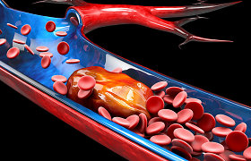 Santaros klinikų kardiologė: COVID-19 infekcija gali pasireikšti sudėtingomis trombozės komplikacijomis. Kaip gelbsti organizmo apsauga?