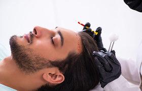 Ką svarbu žinoti prieš plaukų persodinimą ir po jo? Gydytojų komentarai