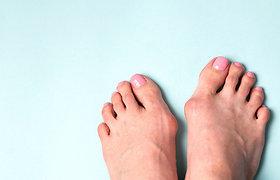 Iškrypęs pėdos didysis pirštas. Ar tai problema?