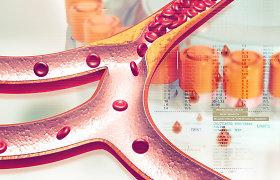 5 svarbiausi patarimai turintiems padidėjusį cholesterolį