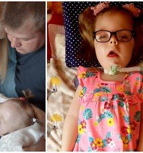 Edvilė serga liga, kurios atvejų pasaulyje – iki 10: tėvus skaudino patarimai jų miegančią princesę palikti