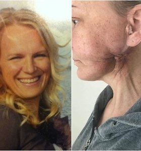 Rasa 7 metus ieškojo pagalbos, o medikai gūžčiojo pečiais, kol vėžys pasiekė 4-ą stadiją