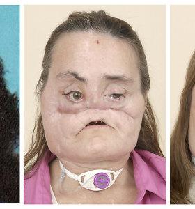 Mirė pirmoji JAV pacientė, kuriai prieš 12 metų buvo persodintas beveik visas veidas