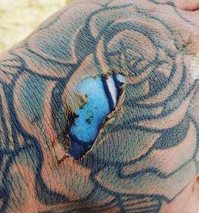Internete kilo tikras mūšis: ar nudeginimas gali atnaujinti tatuiruotę?