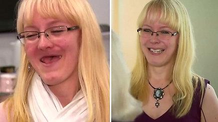 Moteris po pirmos pasaulyje viršutinio žandikaulio ir lūpos rekonstrukcijos 3D implantu vėl gali šypsotis