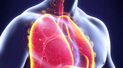Lėtinė obstrukcinė plaučių liga gyvenimą sutrumpina dešimtmečiu