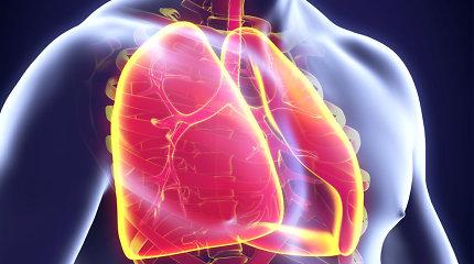 Plaučių uždegimas – viena klastingiausių ligų: kokie žmonės patenka į rizikos grupę?