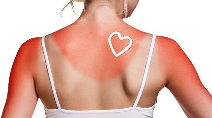 Pirma pagalba nudegus saulėje: dažniausi mitai ir populiariausios klaidos