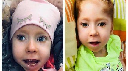 Urtė gimė su lūžusia kaukole ir yra visiškai neįgali: teismas medikus išteisino
