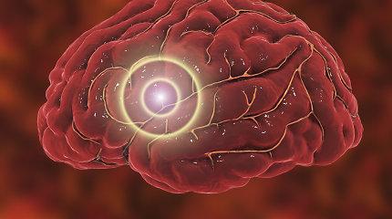 """Gydytojas įspėja: smegenų aneurizma – neišgydoma jokiais vaistais, pavojaus galima išvengti tik mechaniškai ją """"uždarant"""""""