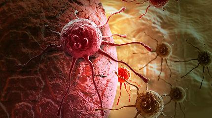 Prostatos vėžys – liga nereiškia nuosprendžio