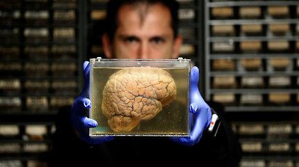 Ar žmogaus smegenys gali pavargti taip pat, kaip ir raumenys?