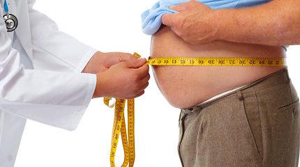 """Pilvo chirurgas apie nutukimo gydymą: """"Riebalų nusiurbimo efektas – trumpalaikis"""""""