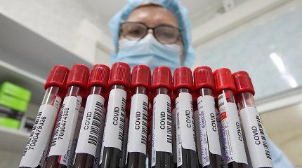 Koronavirusu persirgo 41 tūkst. žmonių, o imuninės kraujo plazmos kitiems ligoniams aukojo vos daugiau nei 300 – kodėl?