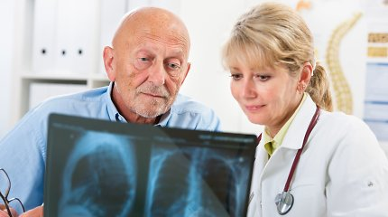 Santaros klinikos apie COVID-19 pasekmes plaučiams: aptinkamos ligos, kurių dar nejuntame