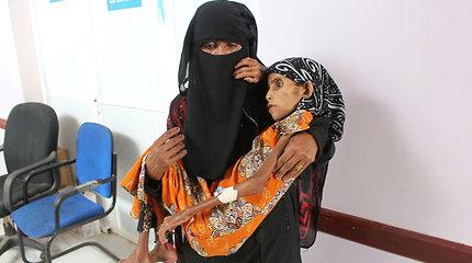 10 kg sverianti dvylikametė apnuogina sukrečiančias Jemeno problemas