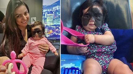 """Mergaitė dėl apgamo atrodo kaip Betmenas, o žmonės ją vadina """"monstru"""" – gydytis atvyko į Rusiją"""