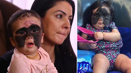 """Mažylę dėl Betmeno ženklą primenančio apgamo žmonės vadino """"monstru"""": po atliktos procedūros – skirtumas akivaizdus"""