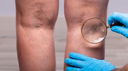 Venų išsiplėtimas: mazgeliai didina pavojingų krešulių susidarymo riziką