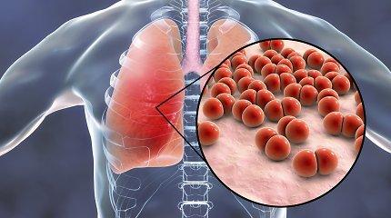 Kovojame ne tik su COVID-19: kiekvieną žiemą siaučia ir pneumokokas