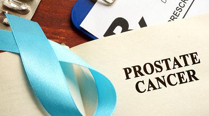 """Gydytojas urologas dr. Mindaugas Danilevičius: """"PSA padidėjimas – ne visada vėžys"""""""