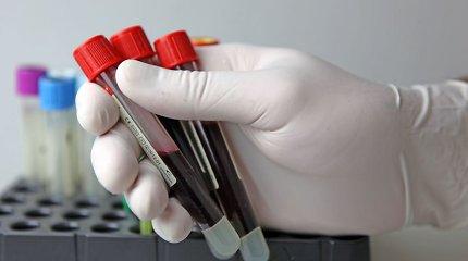 Irena 28 metus nejautė jokių simptomų, tačiau sirgo hepatitu C: užsikrėtė perpilant kraują