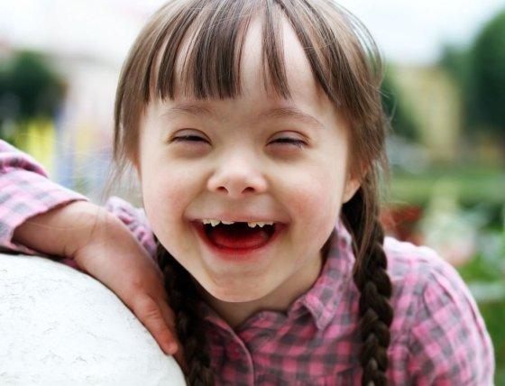 123rf.com nuotr./Dauno sindromą turintys vaikai yra meilūs ir paslaugūs, mėgsta žaisti, pamėgdžioti kitus.