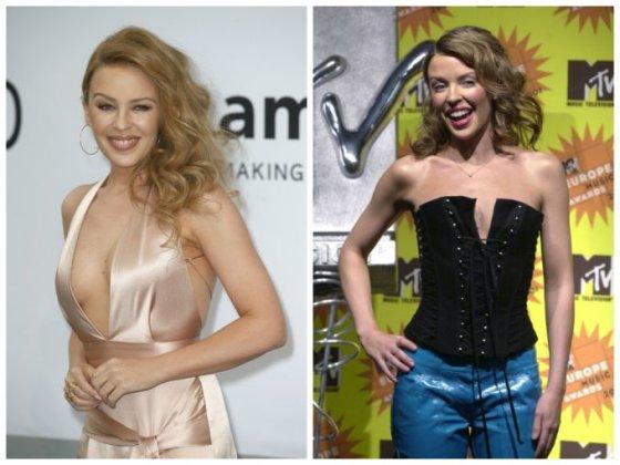 """""""Scanpix"""" nuotr./Kylie Minogue (kairėje 2014 m., dešinėje - 2001 m.)"""